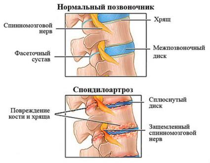 Деформирующий спондилоартроз поясничного отдела позвоночника
