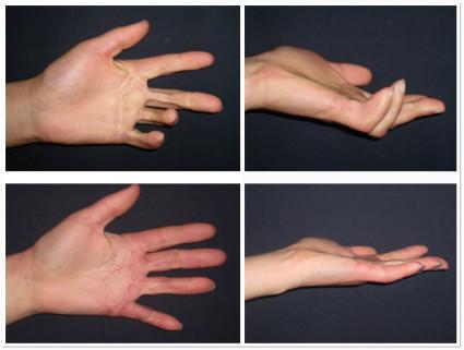 Изображение - Посттравматическая контрактура сустава мкб 10 hand_surgery_45-425x321