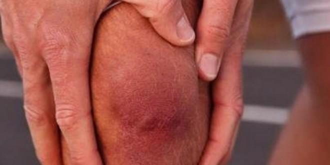 Ужасно болят косточки на ногах