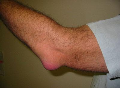 Воспаление в суставах нужно срочно лечить