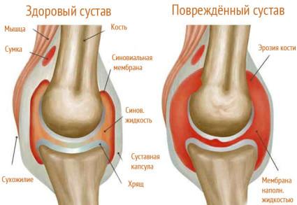 Ноги человека подвержены постоянной нагрузке