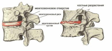 Грудной остеохондроз позвоночника