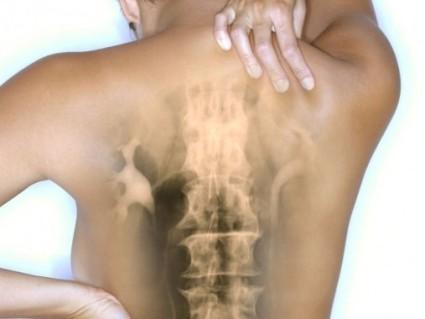 Эффективными методами при остеохондрозе позвоночника являются растирания и мази