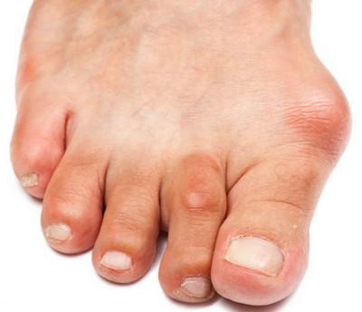 Лечить бурсит большого пальца стопы следует начинать с обеспечения покоя ноги и свободной обуви