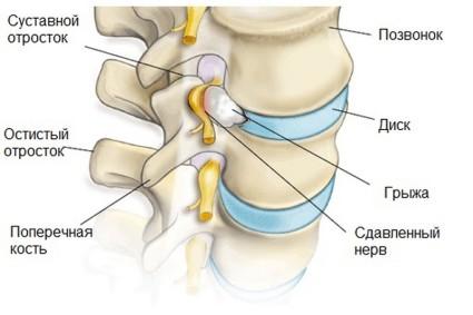 Повреждение нервной системы из за сдавливания