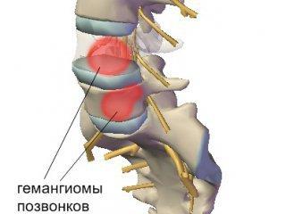 Опухоль в теле позвоночника