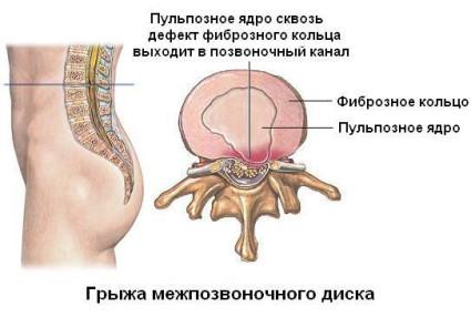 Определить точные размеры межпозвонковой грыжи и стадию ее развития можно с помощью МРТ
