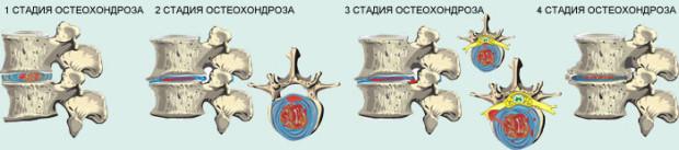 Болезнь шейного отдела у женщин имеет 3 степени проявления
