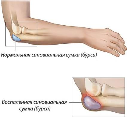 Воспалительные процессы в бурсе