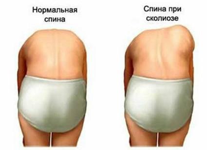 Плохое развитие мышц и связок спины приводит к скалиозу