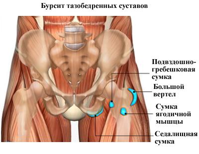 Бурсит тазобедренного сустава