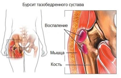 Воспаление в суставе таза