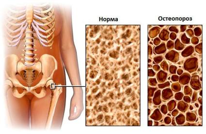 Нормальная кость и кость, подверженная остеопорозом