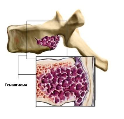Гемангиома может возникнуть в теле позвонка