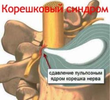 Корешковый синдром - острый приступ боли, распространяющийся вдоль пораженного нерва
