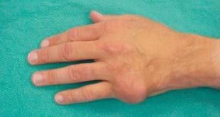 Воспаление сустава на руке