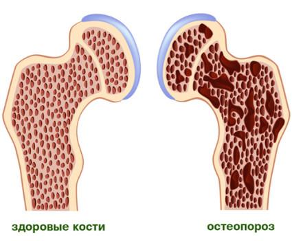 Здоровые кости,кости с остеопорозом