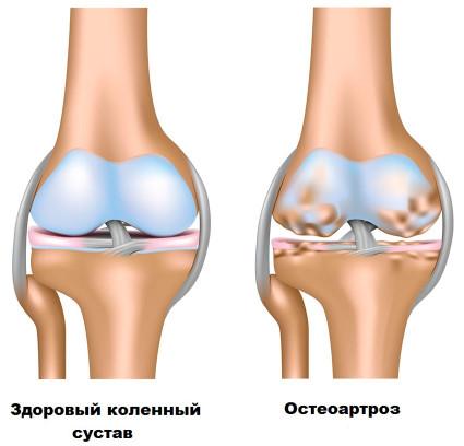 Нормальный хрящ и хрящ с остеоартрозом