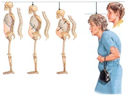 Признаки остеопороза - человек растет вниз