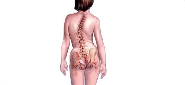 Сколиоз представляет собой заболевание, при котором изменяется форма позвоночник