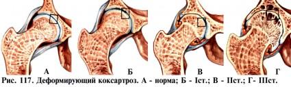 Всего выделяют три стадии коксартроза