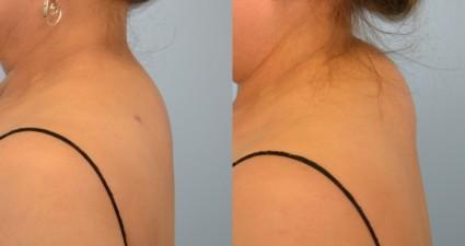 Вдовий горб, загривок, холка - это скопление жира в шейно-грудном отделе позвоночника