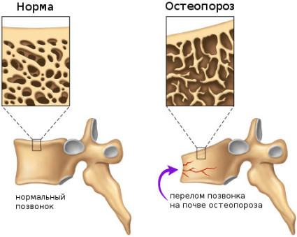 Причиной заболевания является недостаток костного вещества