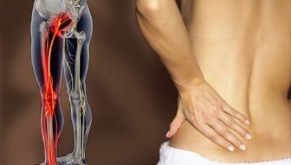 Болевой синдром в спине - это первый сигнал о развитии патологии