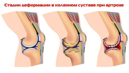 Артроз колена стадии