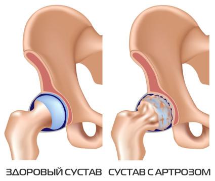 Здоровый сустав и с артрозом