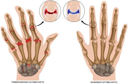 Артроз кистей рук принято делить на два вида