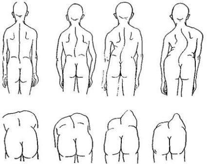 Схемы лечения болей в спине