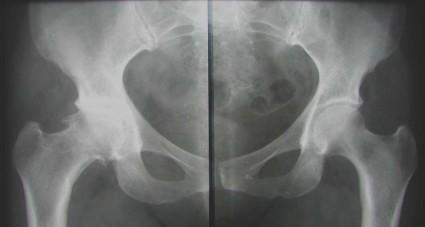 На основании рентгеновского снимка врачом отмечаются костные разрастания в районе хрящей