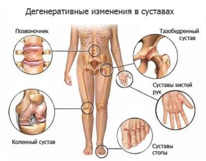 Боль в спине и шее испытывают около 2/3 всего населения