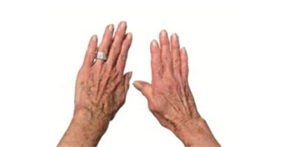 Что делать при остеоартрозе кистей рук