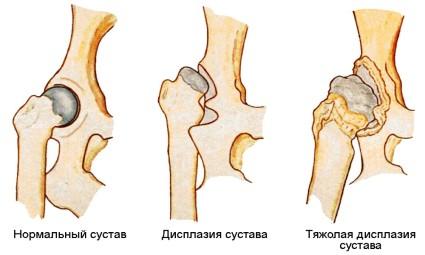 Медицина определяет 3 степени развития артроза тазобедренных суставов
