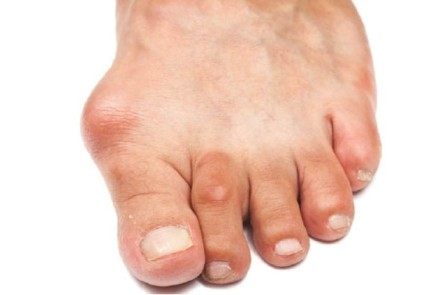"""Большой палец искривляется кнаружи, становясь причиной пресловутой """"косточки"""" или """"шишки"""""""