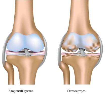 Причина развития остеоартроза не одна, их множество