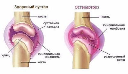 Здоровый сустав и сустав с остеартрозом