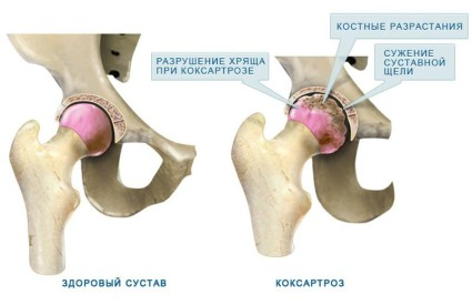 Поражение сустава при коксартрозе