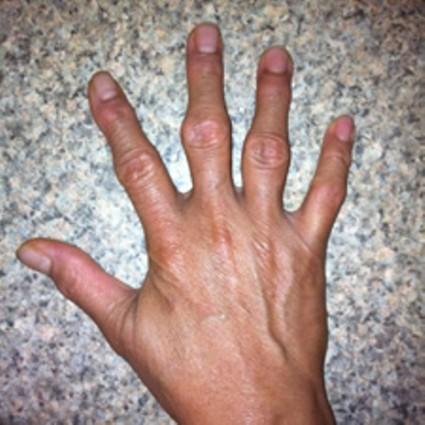 Причины артроза суставов кисти и пальцев рук
