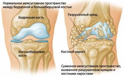 Пораженное коленный сустав