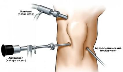 Артроскопия колена сводит к минимуму боли сустава