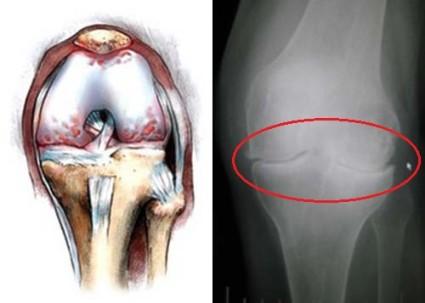 Гонартроз – это заболевание сустава колена