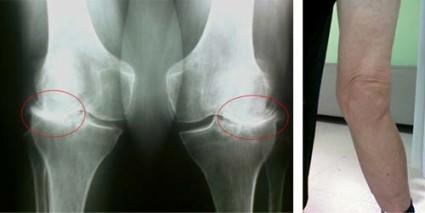Тяжёлые случаи заболевания лечат оперативно, проводя полное или частичное протезирование