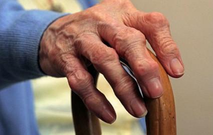 Появление боли в области кистей рук, то это может быть артроз лучезапястного сустав