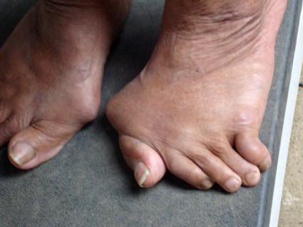 Мумиё применяется при поражении суставов нижних конечностей