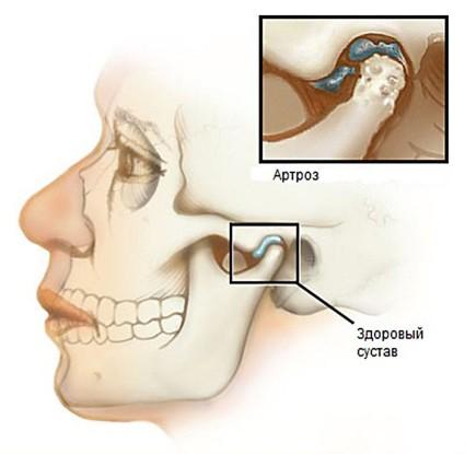 Артроз суставов челюсти