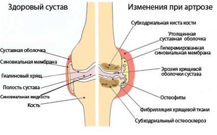 Здоровый сустав и пораженный артрозом