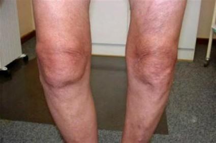 Через определённое время больной замечает признаки деформации колена